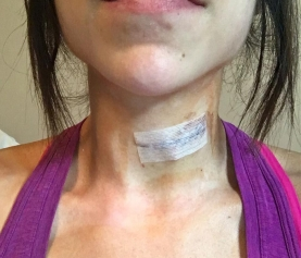 Puccio Shows Optimism After Second Surgery